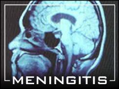 MENINGITIS SHOTS FOR COLLEGE STUDENTS