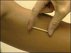 روش کاشتنی پیشگیری از بارداری