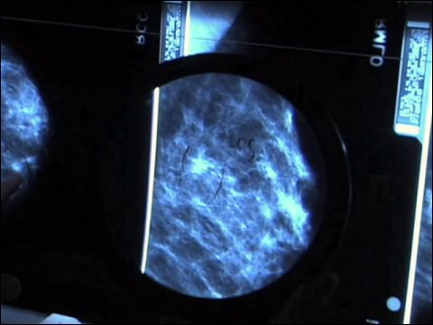 Surviving Mammograms