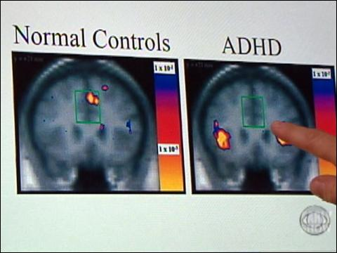 Women Coping With ADHD