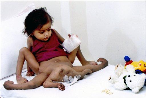 Lakshmi Tatma, parasitic twin