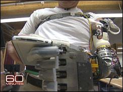 Pentagon's Bionic arm