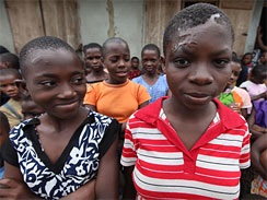 Accused child witches Jane (left) and Mary (right), standing with other children accused of witchcraft, at the Children's Rights and Rehabilitation Network in Eket, Nigeria on Aug. 18, 2009. Jane's mother tried to saw off the top of her skull after a pastor denounced her. Mary, 15, is just beginning to think about boys and how they will look at the scar tissue on her face caused when her mother doused her in caustic soda.